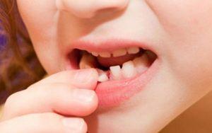 Khi nào nhổ răng sữa cho bé