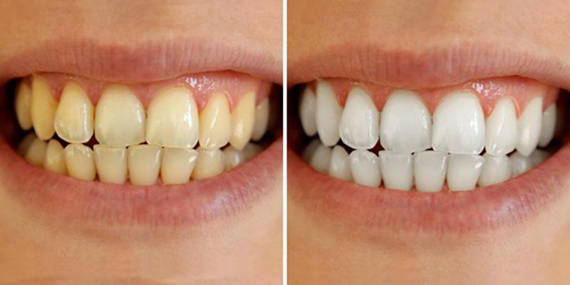 Cạo vôi răng giúp bạn loại bỏ những mảng bám trên răng