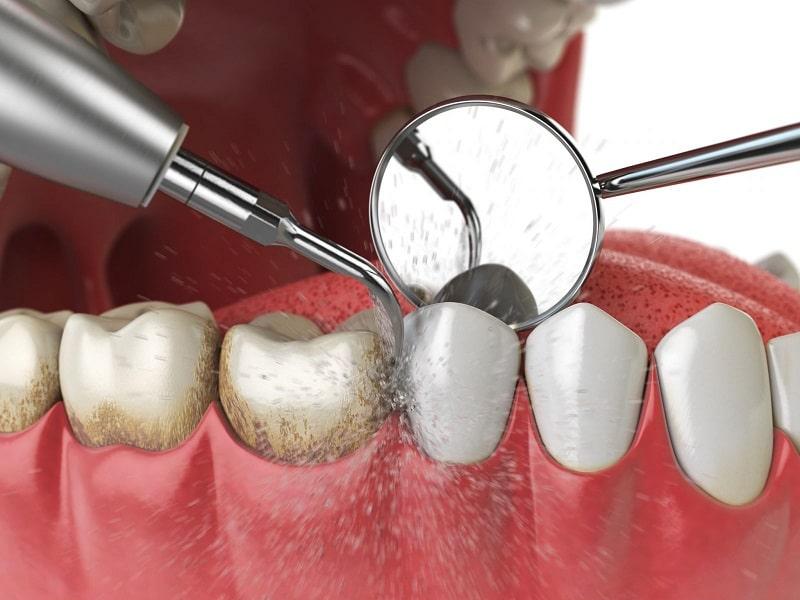 Sử dụng máy siêu âm bạn sẽ bỏ qua nỗi lo lấy cao răng có đau không