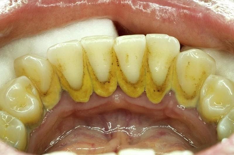 Cao răng dày việc cạo chúng ra khỏi răng sẽ khó khăn hơn