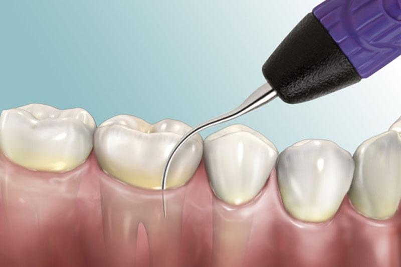 Kỹ thuật lấy cao răng hiện đại nhất hiện nay là sử dụng máy siêu âm