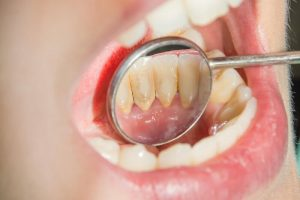 Nha sĩ cần tuân thủ đúng theo các nguyên tắc để đảm bảo lấy vôi răng an toàn