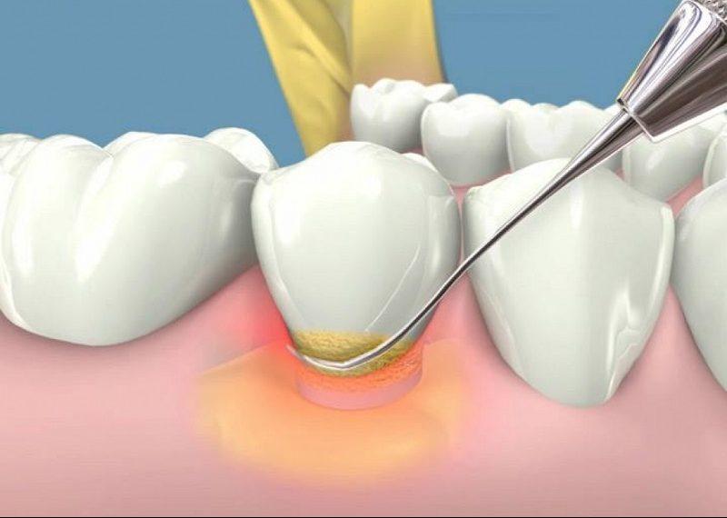 Quy trình cạo vôi răng chuẩn sẽ giúp bạn tránh khỏi những tổn thương