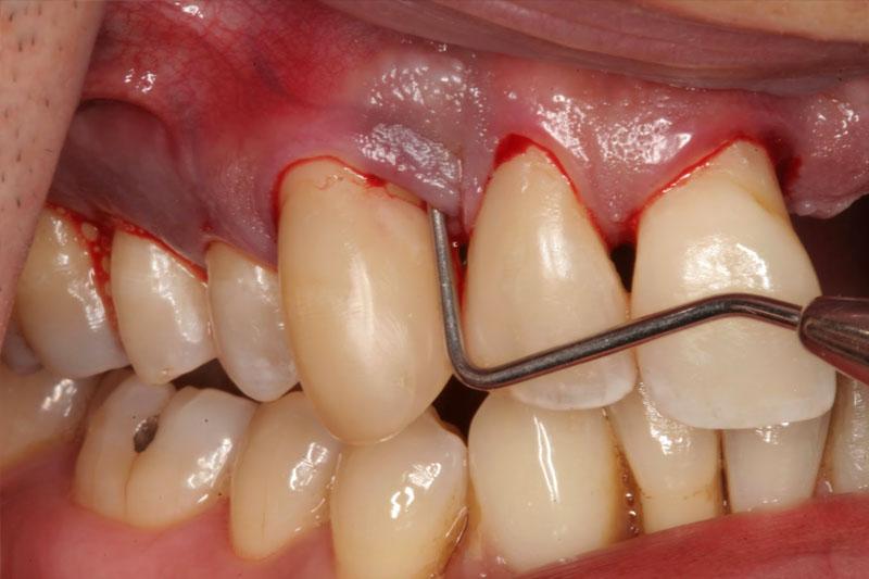 Lấy cao răng sai cách có thể gây ảnh hưởng đến nướu