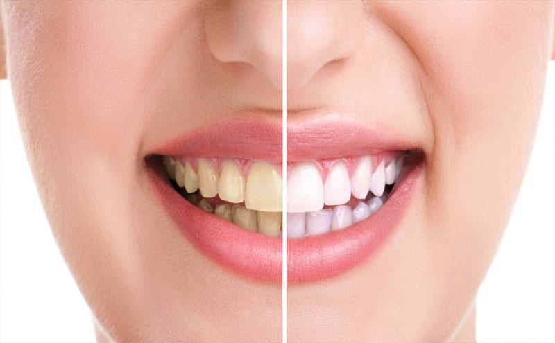 Cạo vôi răng chỉ là thủ thuật nhỏ nhằm loại bỏ mảng bám trên răng