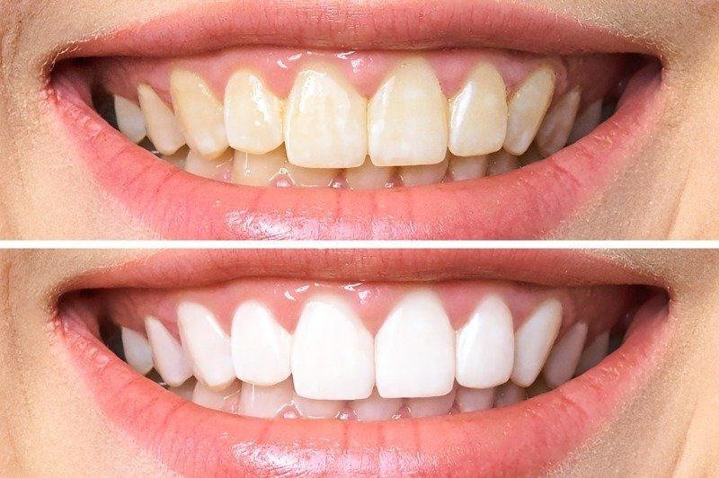 Phương pháp tẩy trắng răng thẩm mỹ cải thiện tình trạng ố vàng, xỉn màu răng