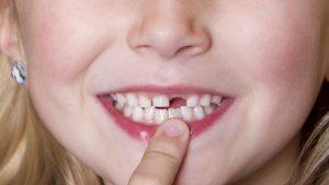 nhổ răng sữa cho trẻ bao nhiêu tiền