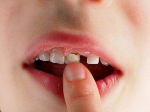 Chân răng sữa không được nhổ hết tùy từng trường hợp mà có mức độ nguy hiểm khác nhau
