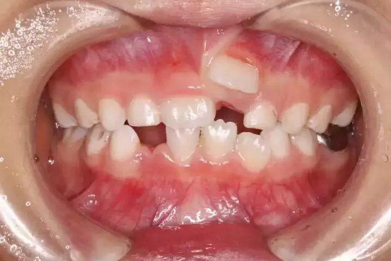 Chấn thương có thể là nguyên nhân khiến răng trẻ bị mọc lẫy