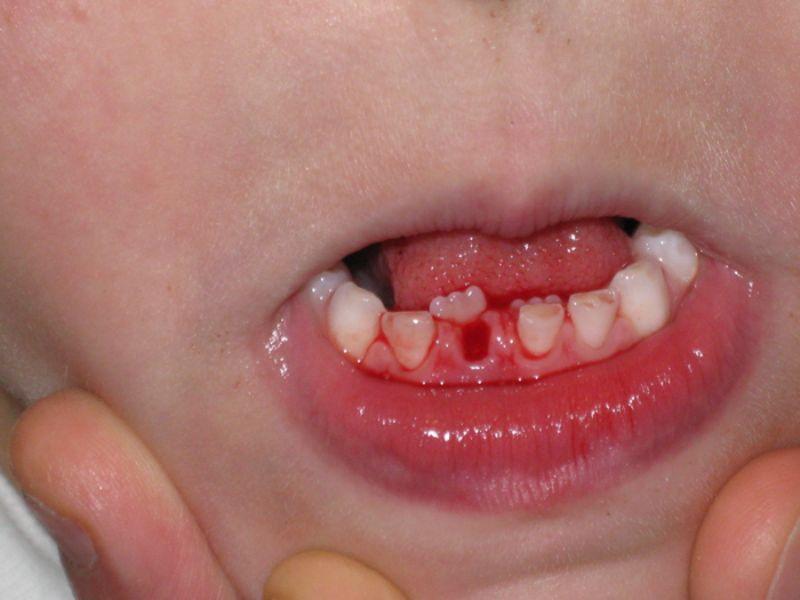 Tình trạng mọc lẫy răng cần được điều trị càng sớm càng tốt