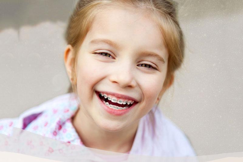 Niềng răng giúp bé khắc phục các vấn đề nha khoa, bao gồm răng mọc lẫy