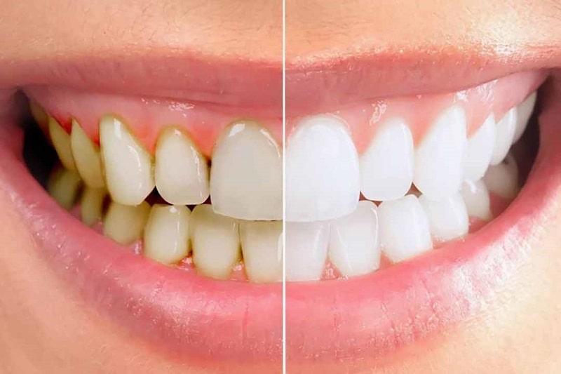 Cao răng là sự tích tụ và cứng lại của mảng bám, khoáng chất từ nước bọt