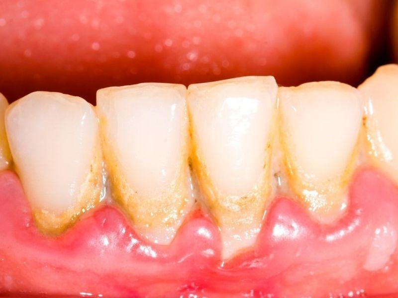 Bà bầu có nên lấy cao răng không? Câu trả lời là CÓ