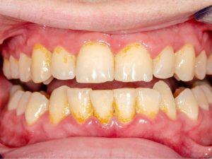 Lấy cao răng có được bảo hiểm y tế không