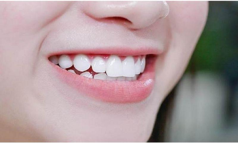 Quy trình trồng răng sứ an toàn trải qua nhiều bước khác nhau
