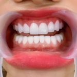 Quy trình trồng răng sứ đúng chuẩn giúp ngăn ngừa viêm nhiễm