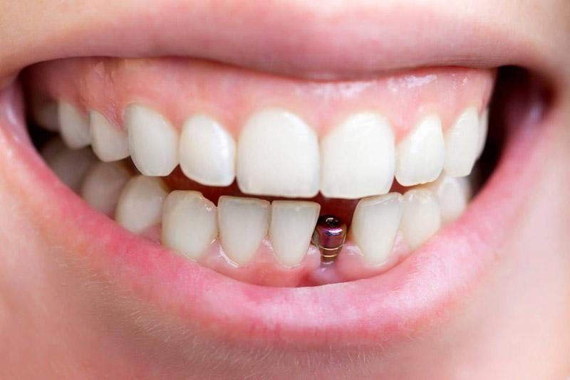 Cấy ghép Implant phục hình răng tối ưu nhất hiện nay