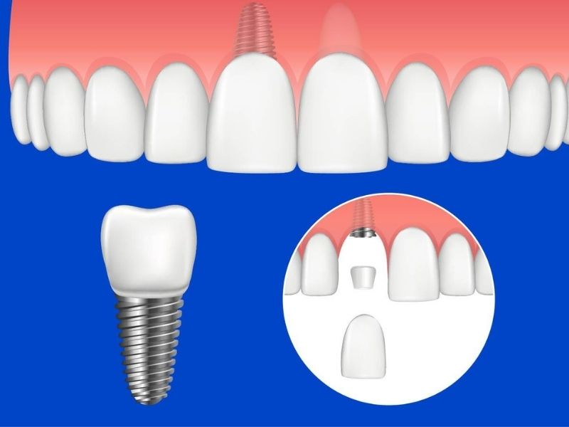 Trồng răng Implant là phương pháp phục hình nha khoa hiện đại