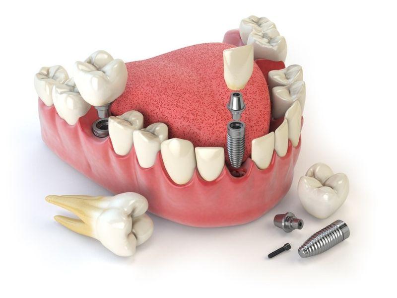 Mức giá trồng răng phụ thuộc nhiều yếu tố