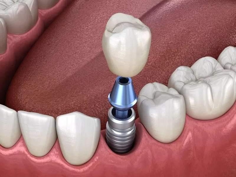 Tùy loại vật liệu răng mà chi phí bạn trả sẽ khác nhau