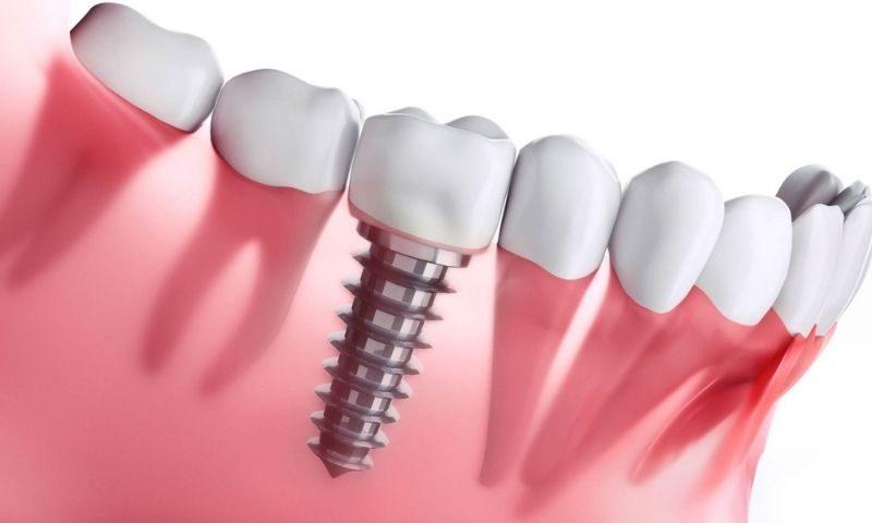 Người bệnh sẽ cảm thấy đau nhất khi thực hiện đặt trụ Implant