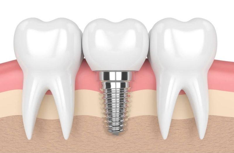 Trồng răng Implant phục hình nha khoa hiệu quả, tính thẩm mỹ cao