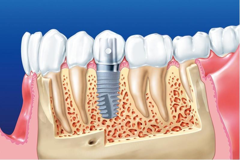 Trồng răng Implant được xem là phương pháp tối ưu nhất hiện nay