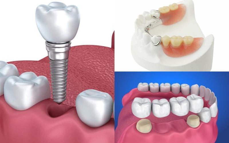 Trồng răng sứ giá bao nhiêu 1 chiếc phụ thuộc phương pháp thực hiện