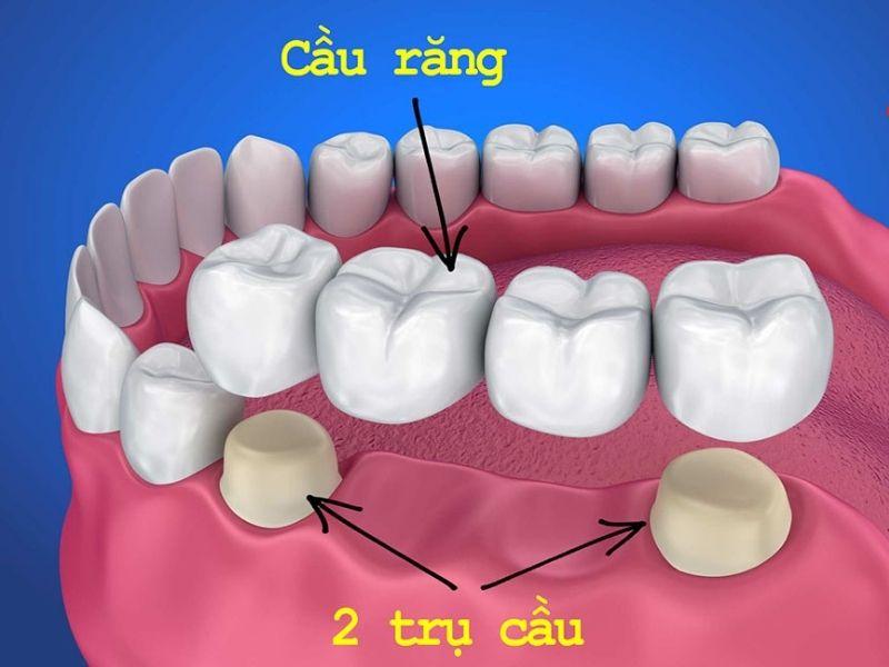 Cầu răng sứ có tính thẩm mỹ cao và giá thành phải chăng