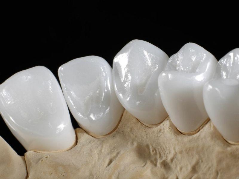 Răng toàn sứ là loại răng có giá thành cao