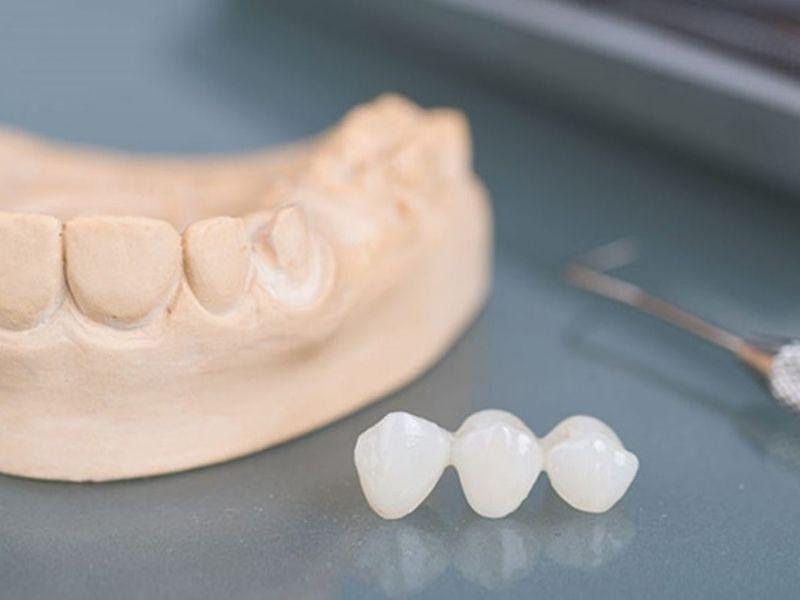 Bạn nên lựa chọn cơ sở nha khoa uy tín để trồng răng sứ