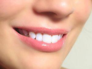 Trồng răng sứ giá bao nhiêu 1 chiếc phụ thuộc nhiều yếu tố
