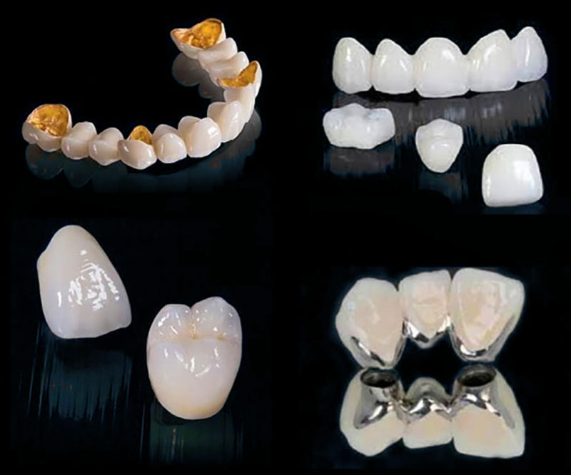 Răng sứ có nhiều loại nhưng cần đảm bảo độ chịu lực cao