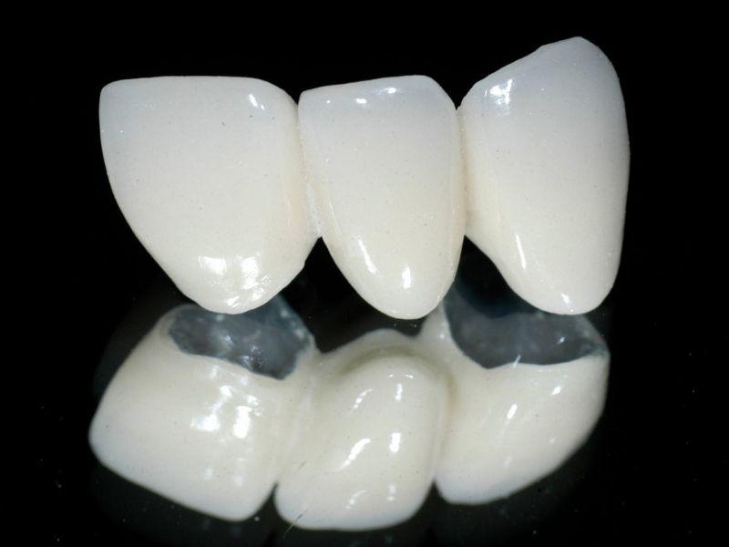 Răng sứ Titan được đánh giá khá cao và nhiều người ưa chuộng