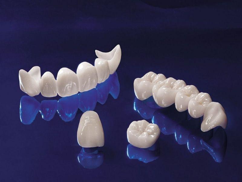 Răng Cercon có sườn và phần bên ngoài được làm bằng sứ