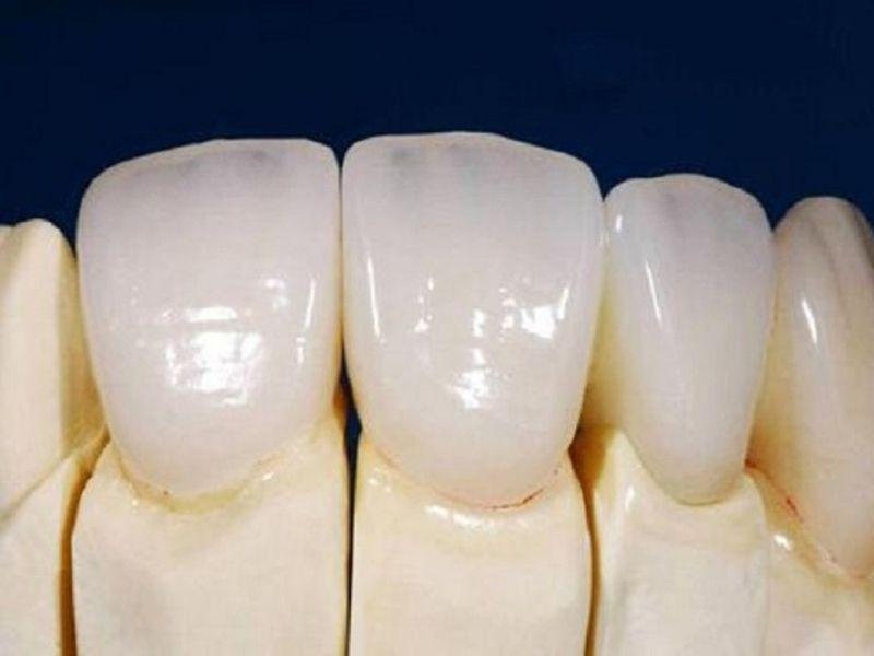 Răng toàn sứ đảm bảo tính thẩm mỹ, độ bền và an toàn cao