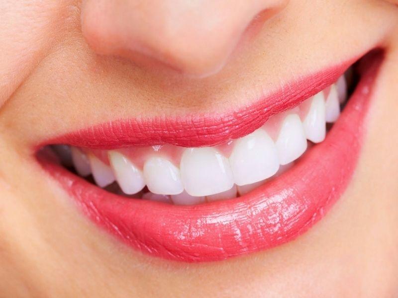 Trồng răng sứ mất bao lâu phụ thuộc vào nhiều yếu tố