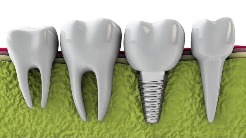 Cấy ghép Implant là phương pháp trồng răng sứ tốn nhiều thời gian nhất