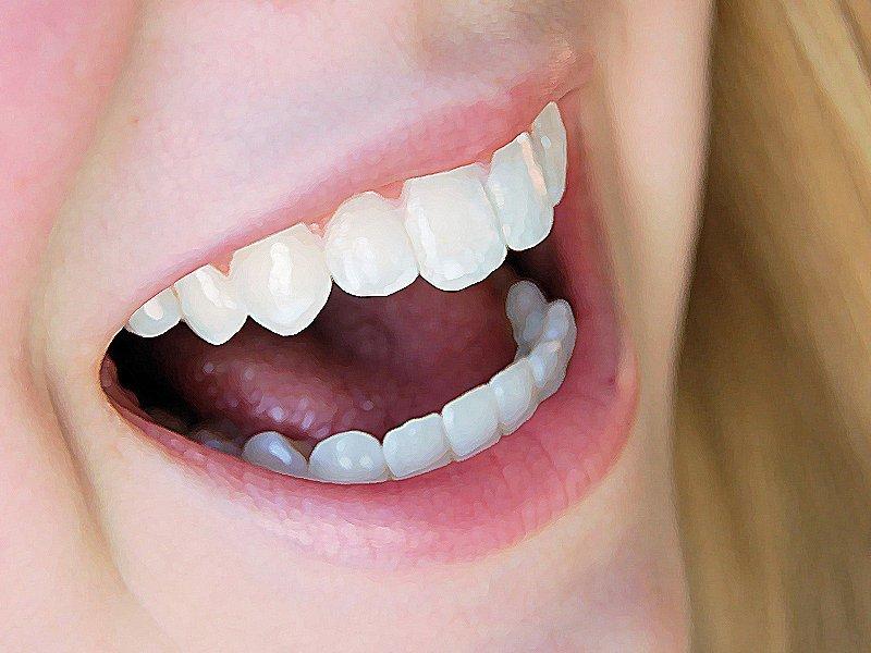Làm răng sứ nguyên hàm mang lại tính thẩm mỹ cao