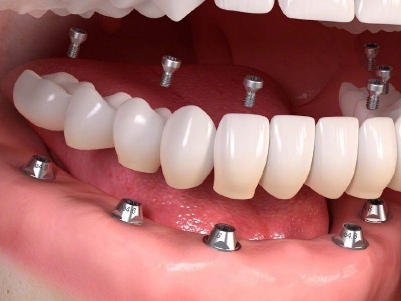 Cấy ghép Implant mang lại hiệu quả phục hình nha khoa cao