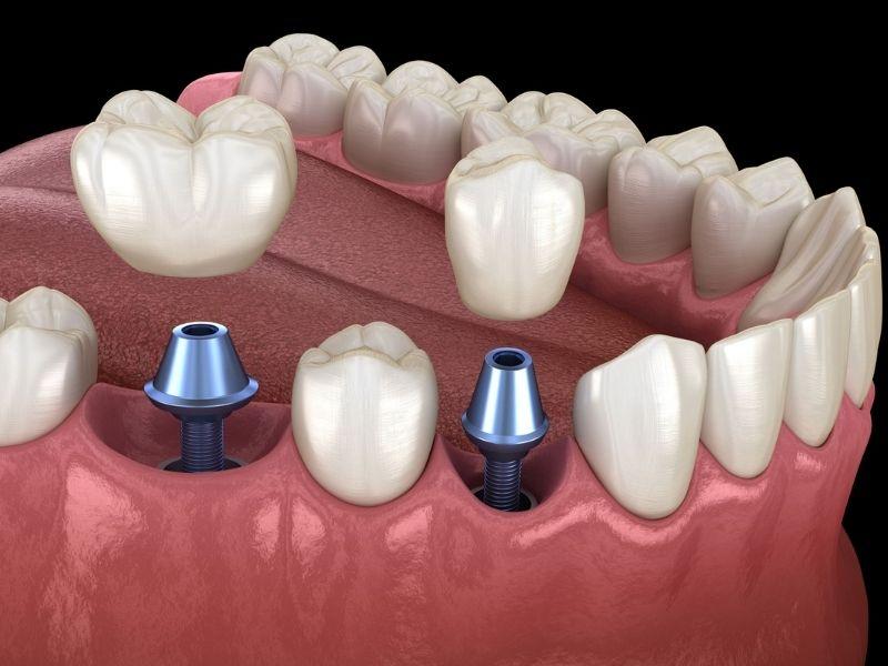 Chi phí ghép Implant cao nhất trong các loại trồng răng