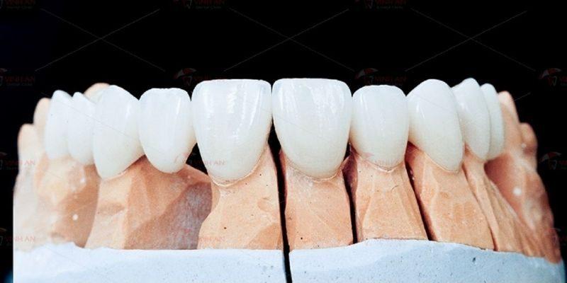 Chi phí làm răng sứ phụ thuộc vào nhiều yếu tố
