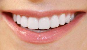 Trồng răng sứ nguyên hàm phục hình nha khoa hiệu quả