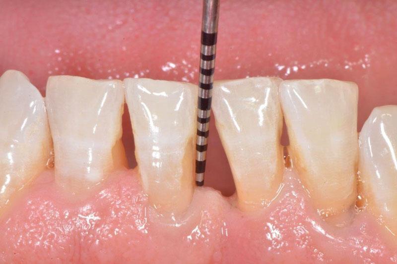 Việc dùng ngoại lực để lấy cao răng khiến bạn cảm thấy ê buốt