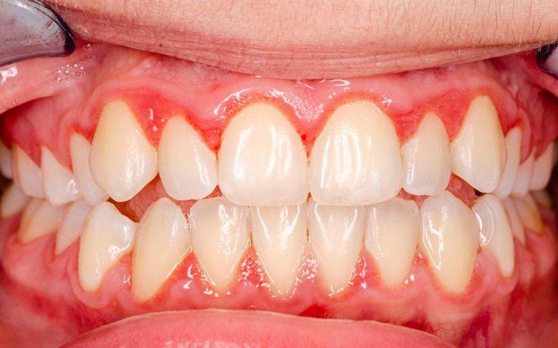 Viêm nướu có thể là nguyên nhân khiến việc cạo vôi răng bị buốt
