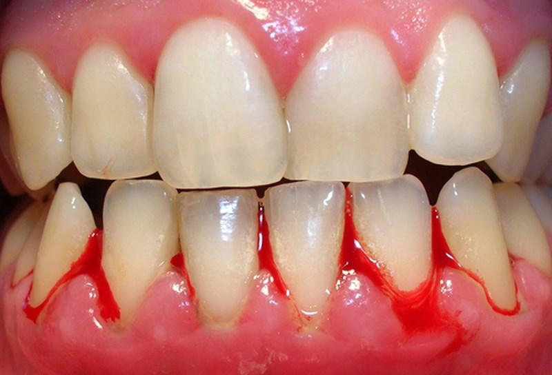 Trường hợp chân răng chảy máu bạn cần nhanh chóng đến gặp bác sĩ điều trị